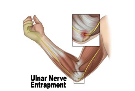 img-elbow-trauma