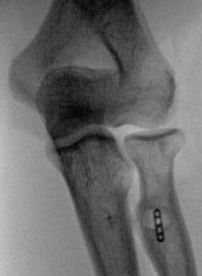 img_distal-biceps-rupture